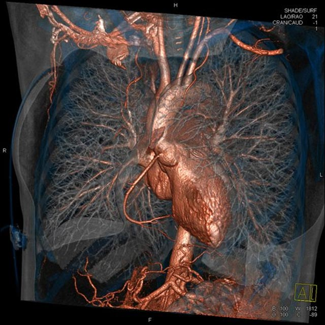 photo radio poumon thorax 3D couleur medecine science